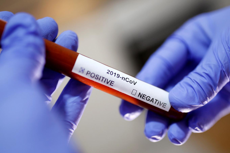 jos-devet-pacijenata-preminulo-u-srbiji-pozitivnih-236