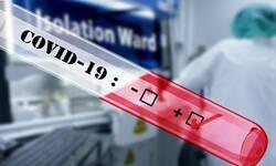 od-danas-na-kosovu-testovi-na-kovid-19-i-u-privatnim-laboratorijama-cene-od-20-do-50-evra